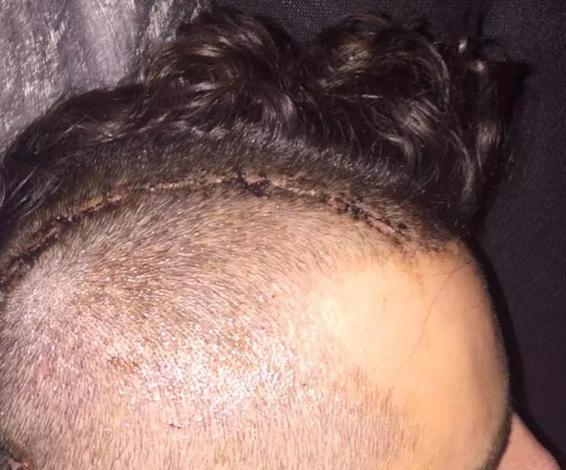 U përplas gjatë një dyluftimi në ajër, ish-futbollisti tregon: Kam 14 pllaka metali dhe 28 vida në kokë, është e tmerrshme